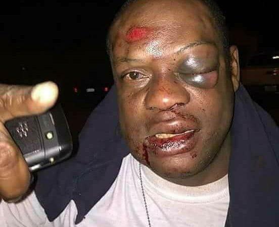 Un Nigérien tabassé pris pour Top Adlerman