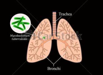 Le taux de la tuberculose continue de baisser en Haïti