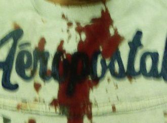 Port-au-Prince-Manifestation antigouvernementale: 4 personnes blessés   par balles