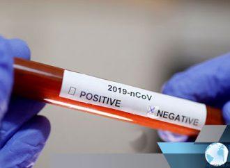 Haïti-Coronavirus : Le professeur suspecté à l'université de Limonade testé négatif